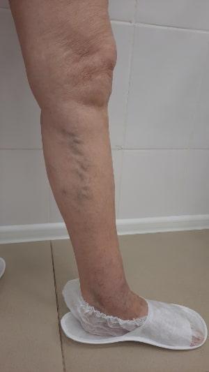 Результаты лечения варикоза в нашем центре флебологии