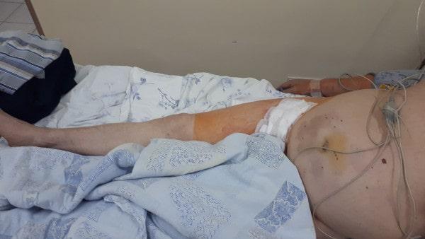 Эндоваскулярное лечение закупорки подвздошной артерии больному с ожирением