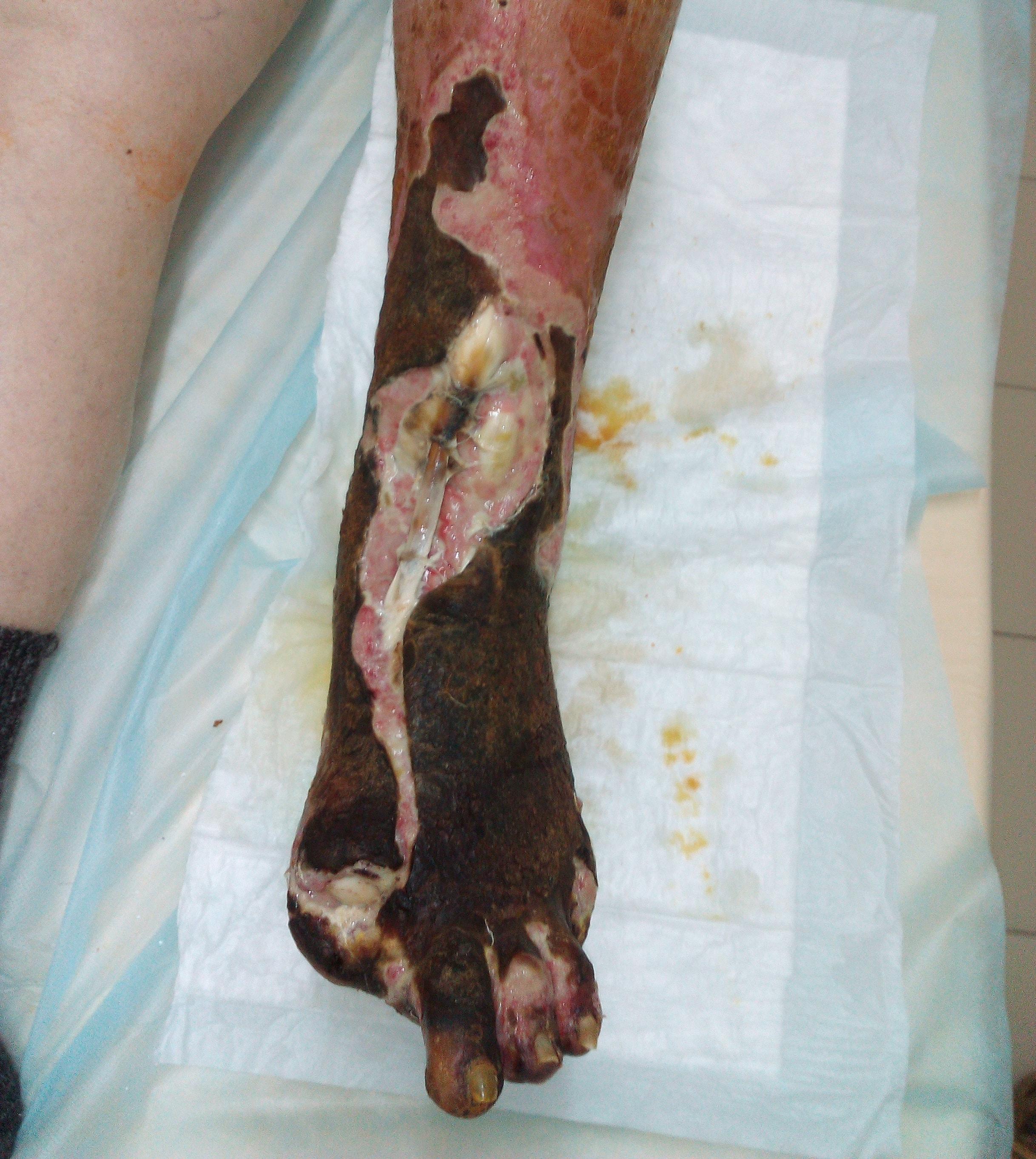 Язвы в области г стопного сустава повреждение большеберцовых связок голеностопного сустава