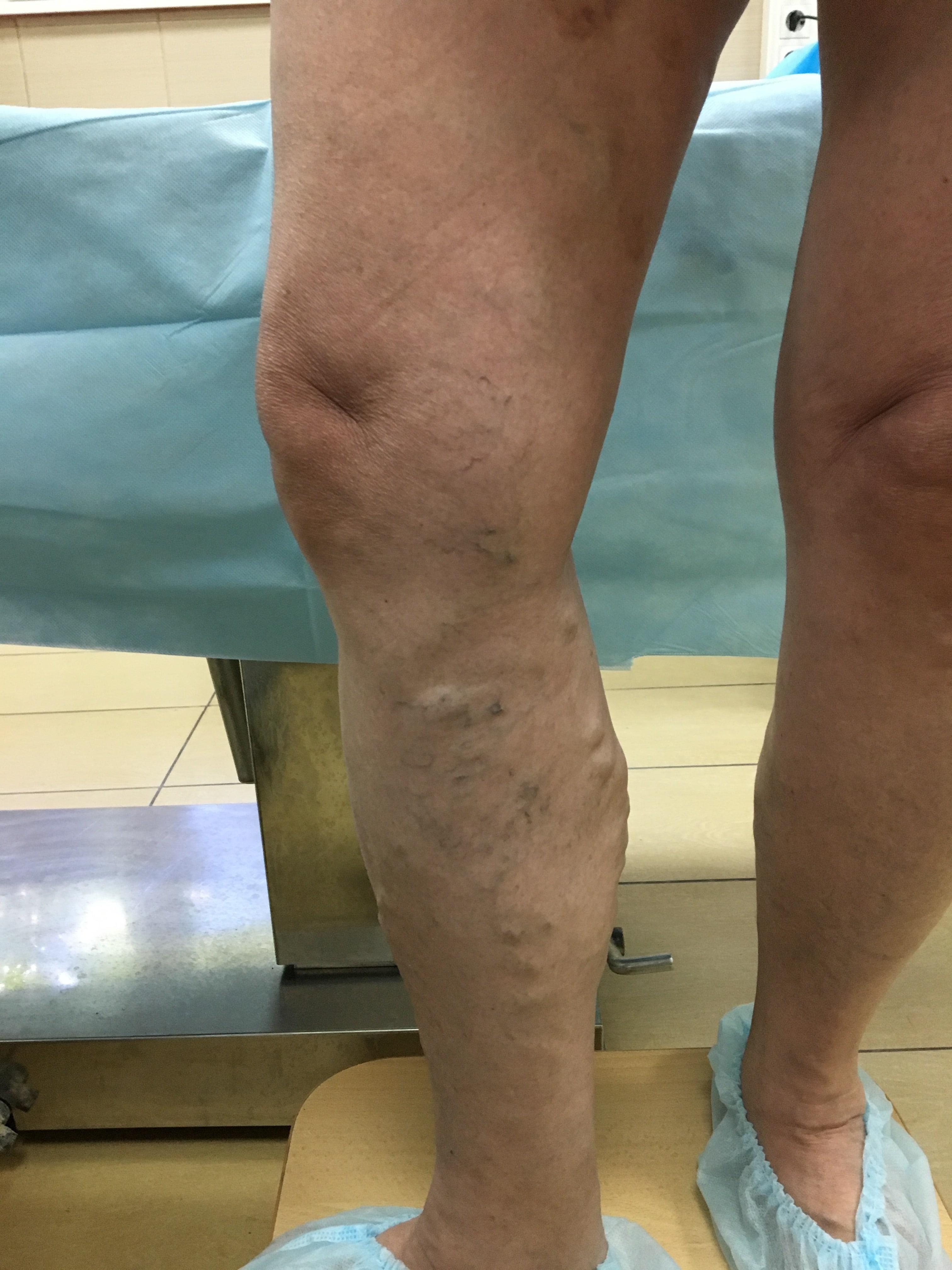 Вид ноги с варикозом до лечения