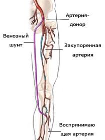 Гиперплазия эндометрия и эндометриоз симптомы и лечение