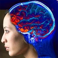 Ишемический инсульт - одна из основных причин инвалидности и смерти в современном мире