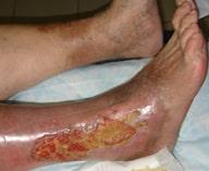 ptb - Maladie post-thrombophlébite (syndrome PTFB) - symptômes, diagnostic et traitement