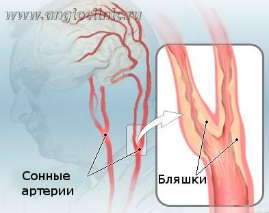 Бляшки в сонных артериях являются самой частой причиной ишемического инсульта