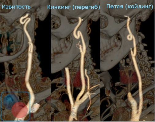 Различные виды патологической извитости сонных артерий