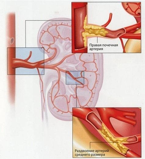 Бляшки в почечных артериях - одна из частых причин гипертонии
