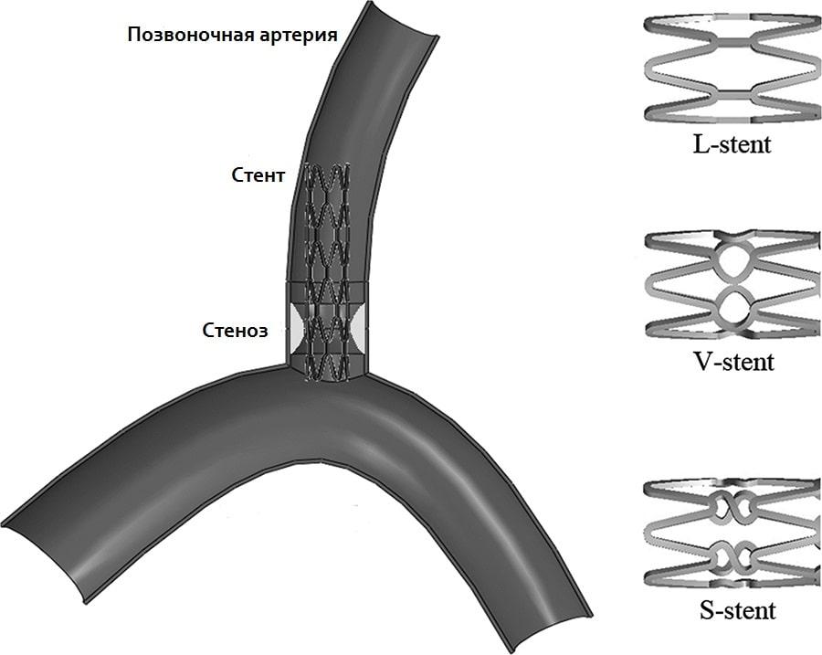 Схема стентирования позвоночной артерии