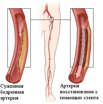 Ангиопластика и стентирование артерий нижних конечностей при атеросклерозе