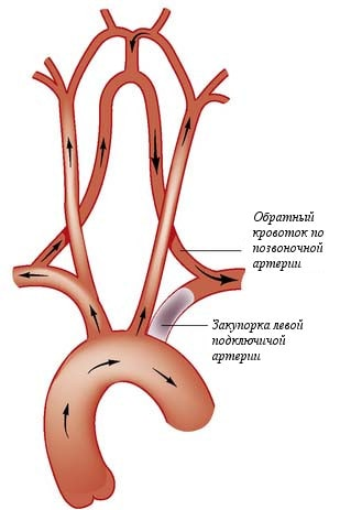 Ангиопластика и стентирование - основной метод лечения окклюзии подключичной артерии