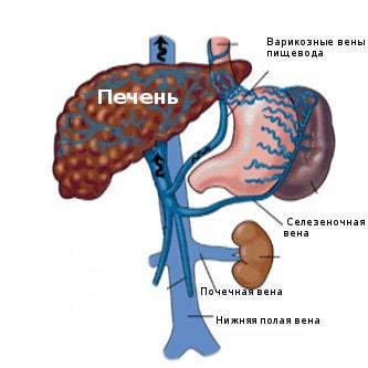 При циррозе печени кровь скапливается в венах желудка, которые расширяются