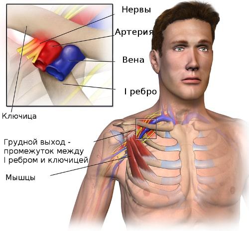Схема формирования синдрома грудного выхода