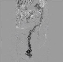 Флебография при варикоцеле (фото)
