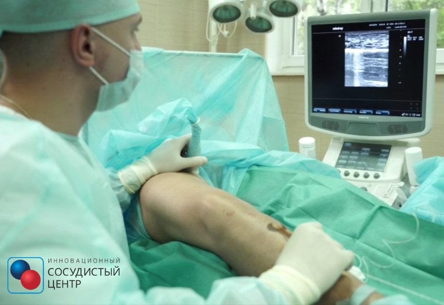 Лечение варикоза лазером в Москве (Фото1)