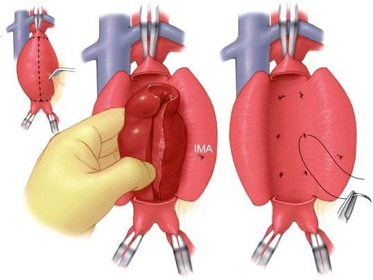 Когда наложены сосудистые зажимы производится вскрытие просвета аневризмы, удаление тромботических сгустков из полости аневризмы и остановка кровотечения из ветвей
