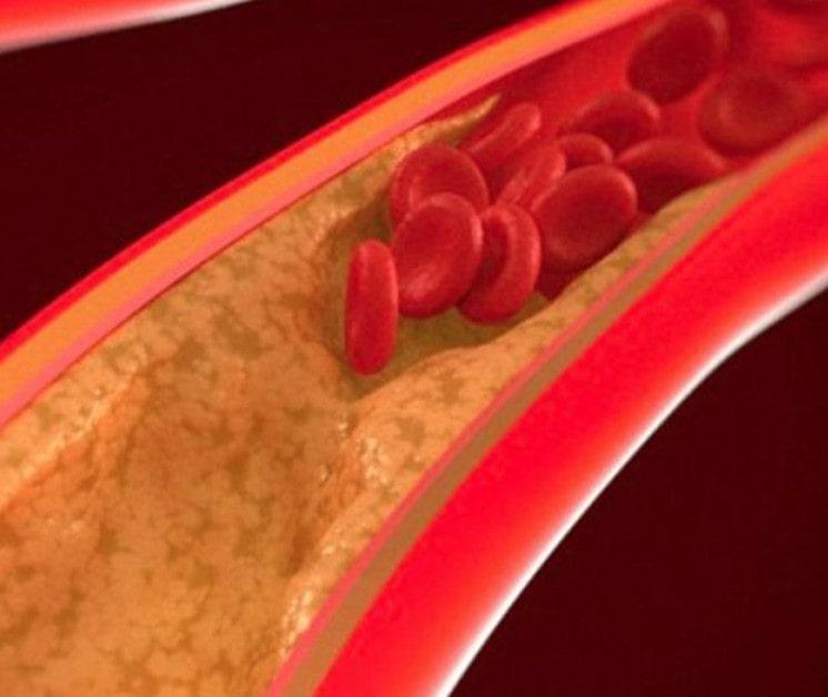 Стенки сосудов при диабете покрыты кальцинированными бляшками