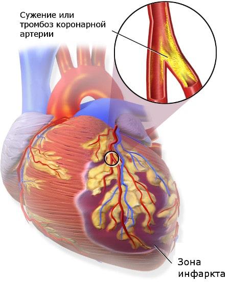 Блокирование кровотока в коронарной артерии приводит к гибели сердечной мышцы
