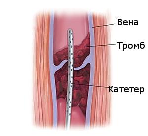 Растворение тромбов в сосудах с помощью препаратов
