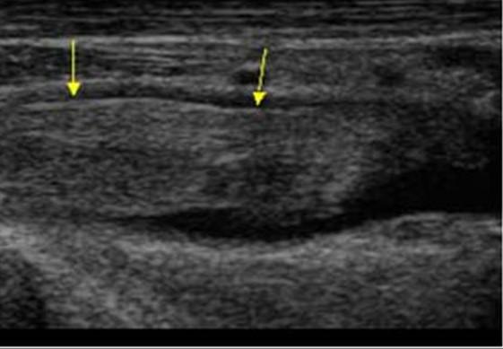 Тромб в подключичной артерии