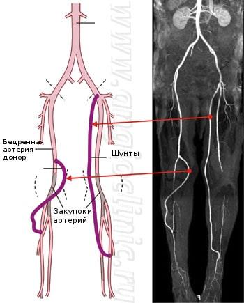 Аутовенозное шунтирование позволяет восстановить кровообращение даже при поражении артерий голени и стопы