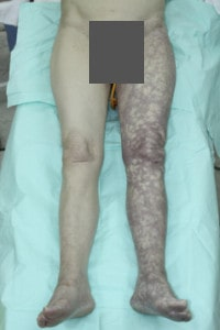 Острая ишемия левой ноги