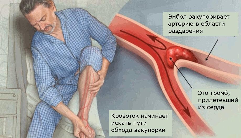 Эмболия является одной из частых причин острой артериальной недостаточности