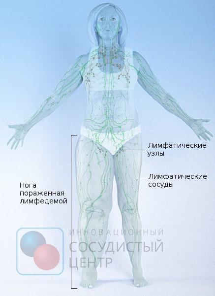 Что такое лимфостаз нижних конечностей фото