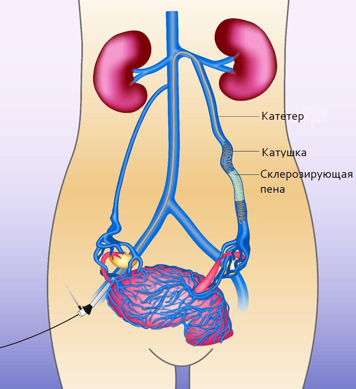 Эмболизация маточных артерий (ЭМА): проведение операции, противопоказания