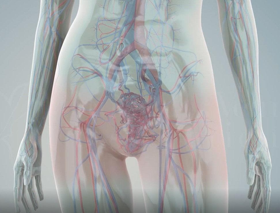 Фото - Варикоз малого таза приводит к хронической тазовой боли