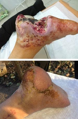 Пересадка лоскута на сосудистой ножке не только закрывает раны, но и улучшает кровообращение