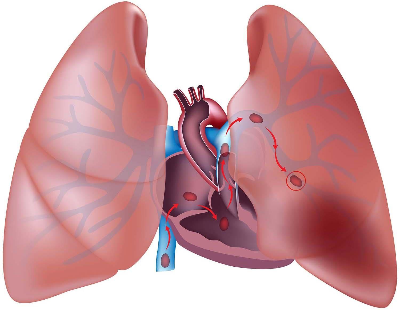 Тромбоэмболия легких - закупорка тромбом легочных артерий