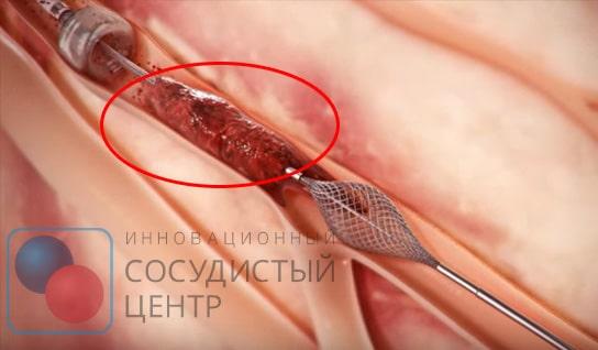 Тромбэктомия - операция по удалению тромбов